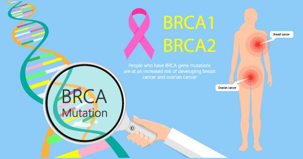 BRCA1 and 2 picture